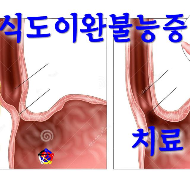 사암침, 사암침법 - 식도이완불능증 치료 방법