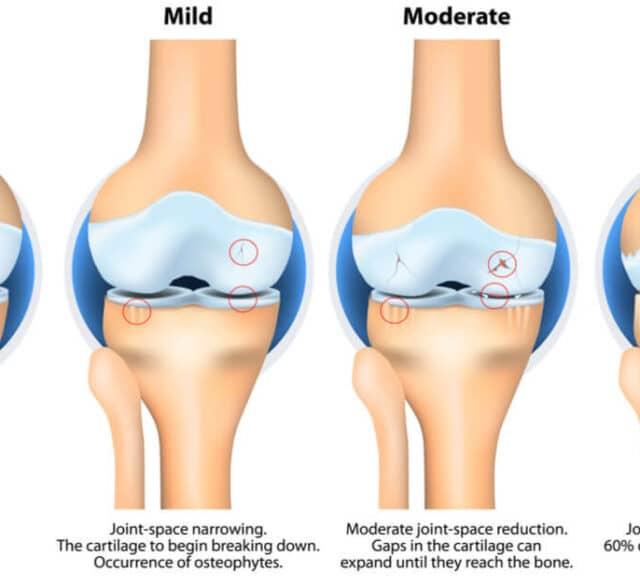 knee arthritis 640x585 - 양의학은 환상 41 - 인보사, MMR 백신, 자폐증