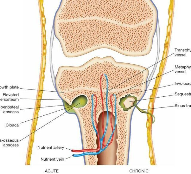 osteomyelitis 640x585 - 양의학이 과학? 39 - 골수염으로 인해 다리를 잃을 뻔했던 환자 (치료방법 포함)
