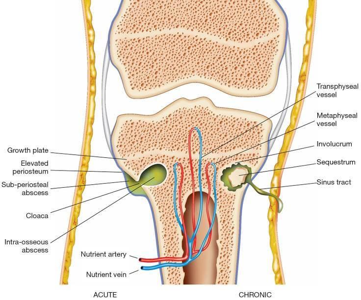 osteomyelitis - 양의학이 과학? 39 - 골수염으로 인해 다리를 잃을 뻔했던 환자 (치료방법 포함)