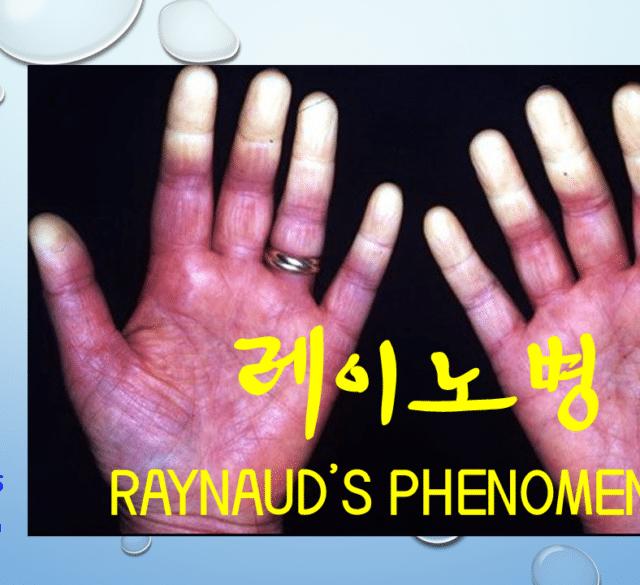 비과학적 양의학 53 - 레이노병 치료 방법