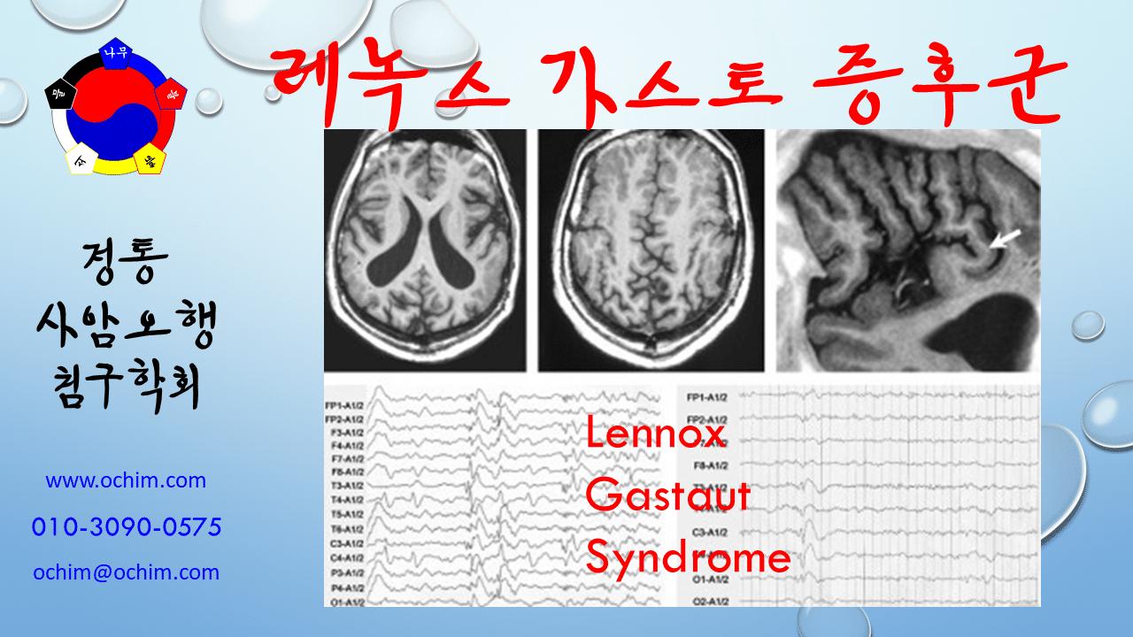 비과학적 양의학 52 - 레녹스-가스토 증후군 치료 방법