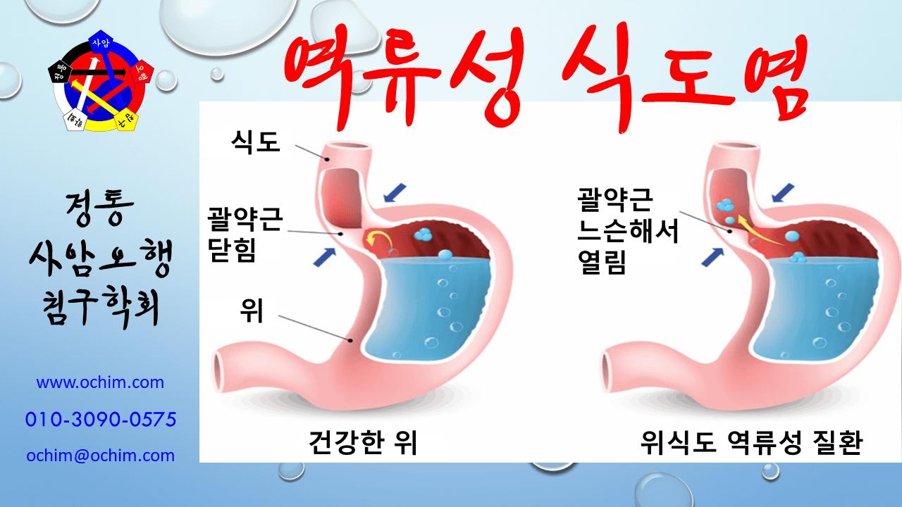 비과학적 양의학 64 - 역류성 식도염 치료 방법