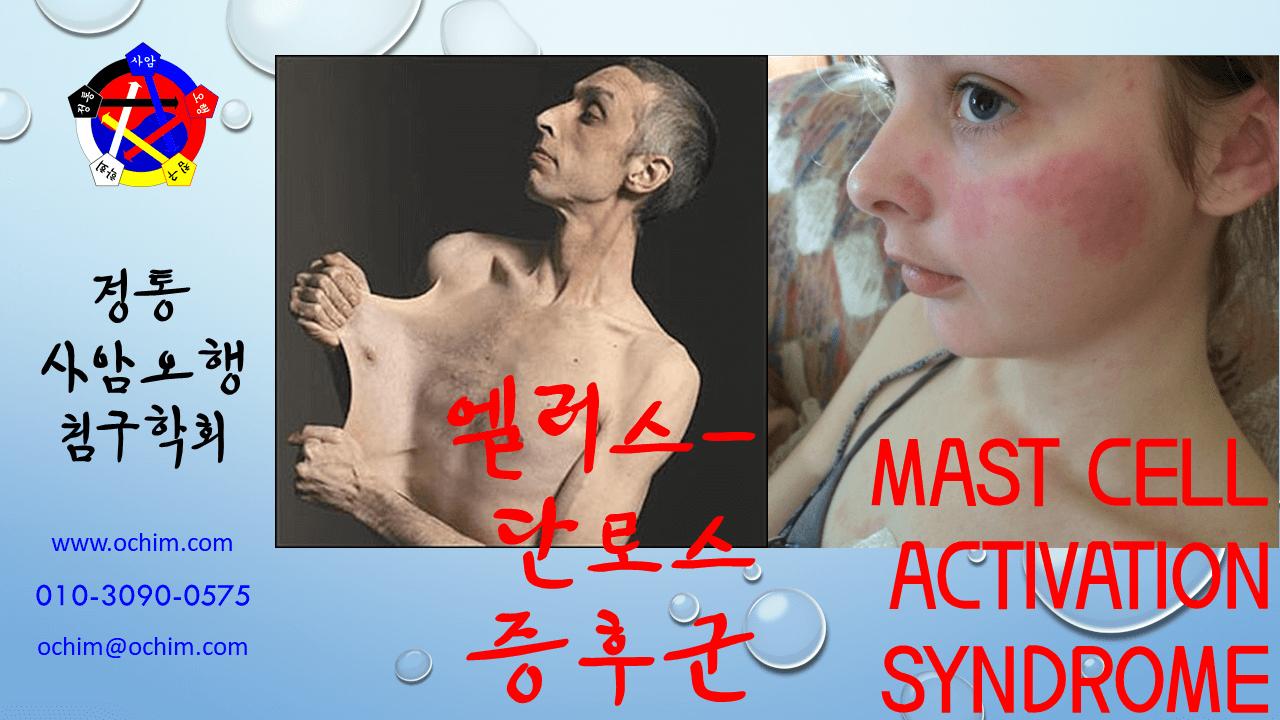 양의학 66 엘러스 단로스 증후군과 Mast cell activation syndrome - 비과학적 양의학 66 - 엘러스-단로스 증후군과 Mast cell activation syndrome 치료 방법