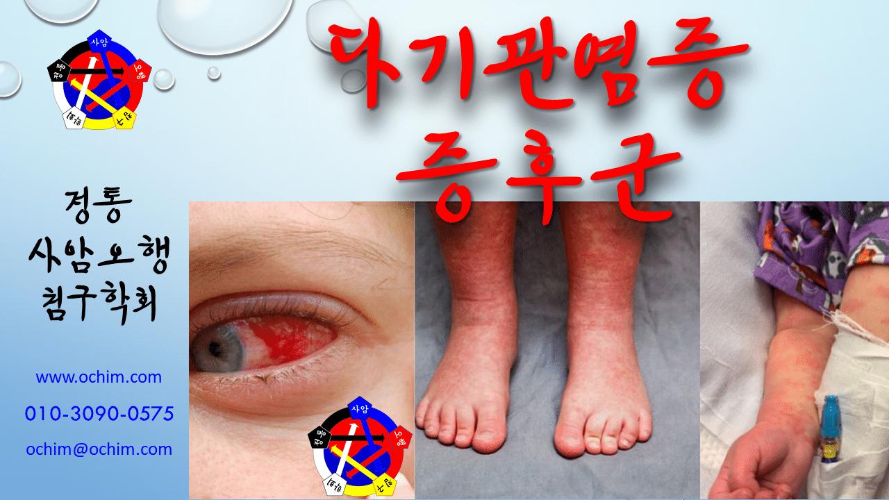 사암침법 - 다기관염증증후군 - 비과학적 양의학 93