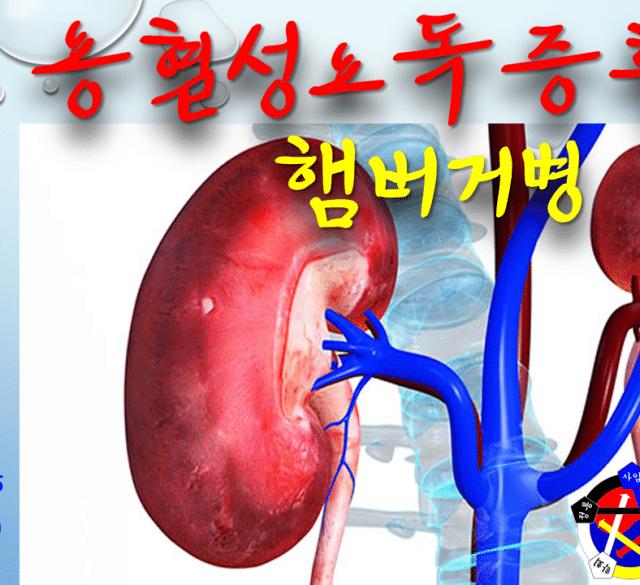 사암침법 - 용혈성요독증후군 햄버거병 치료 방법 - 비과학적 양의학 97