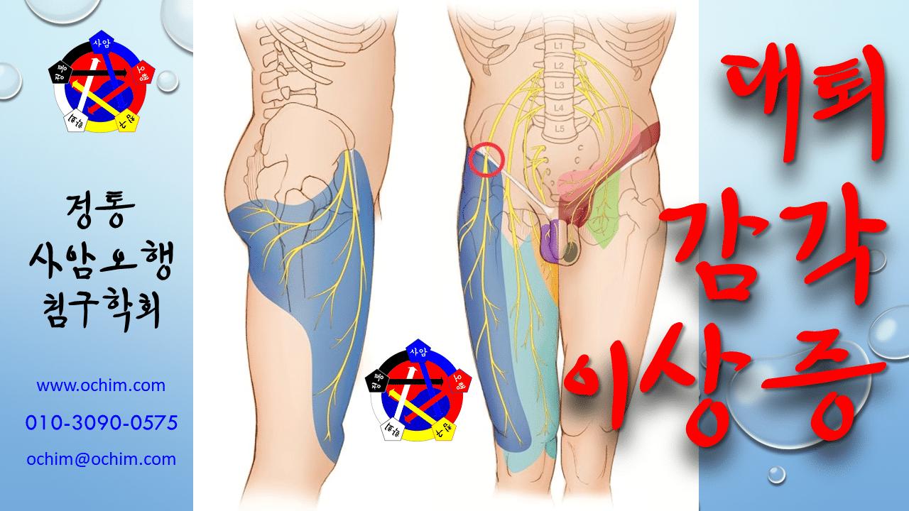 사암침법 - 대퇴감각이상증 치료 방법 - 비과학적 양의학 99