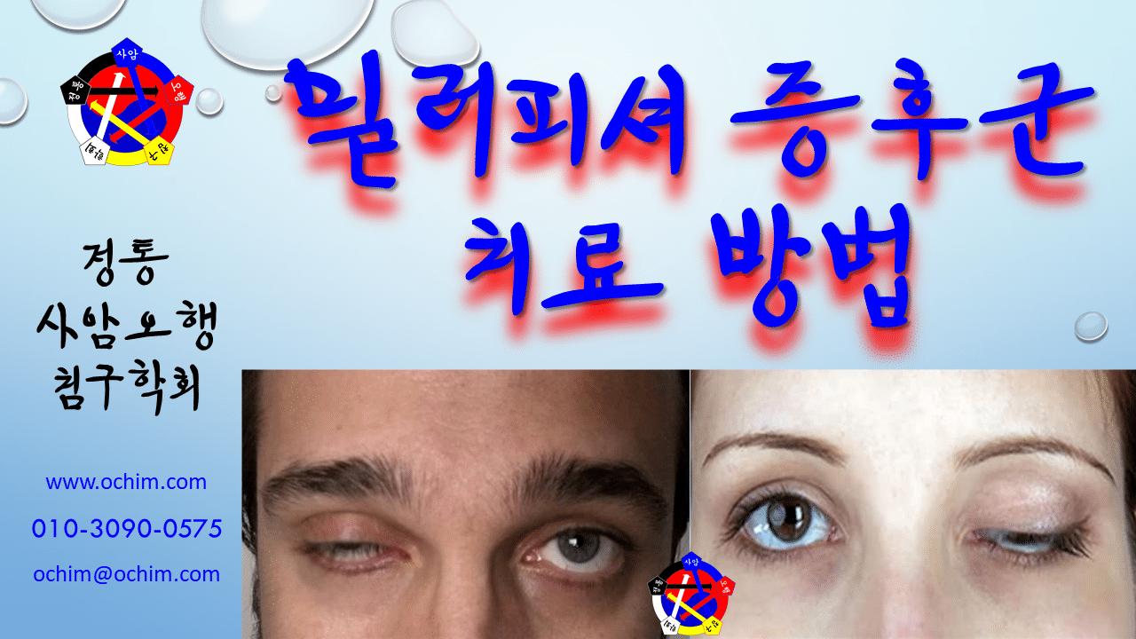 사암침법 - 밀러피셔 증후군 치료 방법 - 비과학적 양의학 110