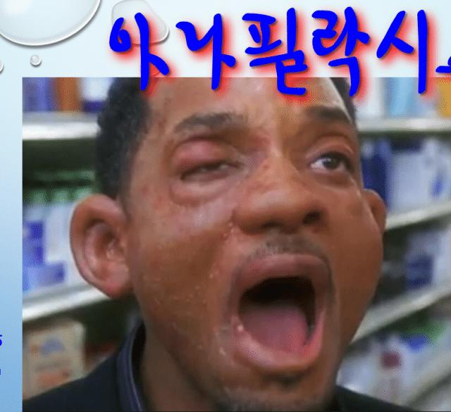 사암침, 사암침법 - 아나필락시스 치료 방법 - 비과학적 양의학 117